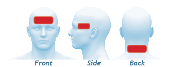 Image showing the best places to put the ambi to relieve migraine pain including the forehead the temples and the back of the head